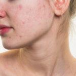 Trockene Haut und Akne: Ursachen, Behandlungen, Hausmittel und mehr