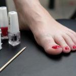 10 Tipps zur Behandlung und Vorbeugung eingewachsener Zehennägel