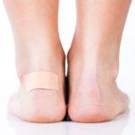 Blasen an Lippe, Hand, Bein oder Zehe - 10 Ursachen und 9 Hausbehandlungen