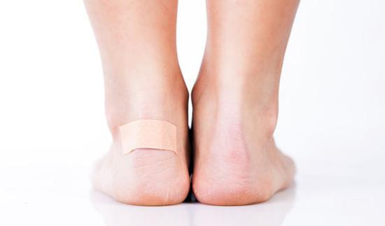 Blasen an Lippe, Hand, Bein oder Zehe - 10 Ursachen