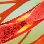 16 natürliche Wege&Tipps zur Senkung des Cholesterinspiegels (zu Hause!)