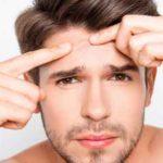 7 Nebenwirkungen der Anwendung von Neosporin bei Akne und Pickeln (NO!)