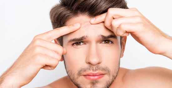 7 Nebenwirkungen Neosporin bei Akne und Pickeln