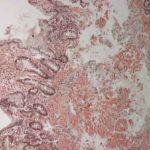ATTR-Amyloidose: Ursachen, Symptome und Behandlungen (wie sie unseren Körper beeinflussen)