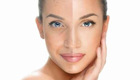 Hautpigmentierung 7 Ursachen und 10 Hausmittel