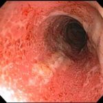 12 Dinge, die Sie über die Behandlung von Colitis ulcerosa wissen sollten