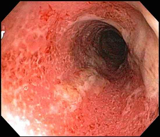 Behandlung von Colitis ulcerosa