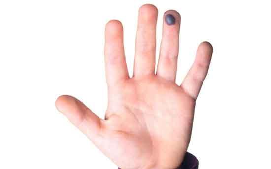 Blutblase am Finger 12 Ursachen und 10 Hausmittel