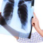 COPD-Wiki: Definition, Ursachen, Symptome, Behandlung, Lebenserwartung