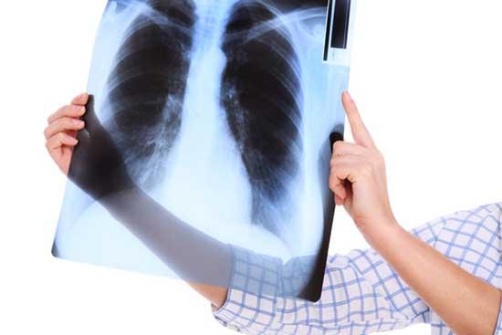 COPD-Wiki Definition, Ursachen, Symptome, Behandlung, Lebenserwartung