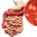 Colitis ulcerosa: Komplikationen, Krebsrisiko, Medikamente