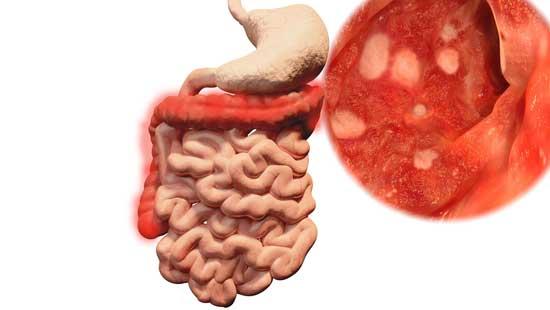 Colitis ulcerosa Komplikationen, Krebsrisiko, Medikamente