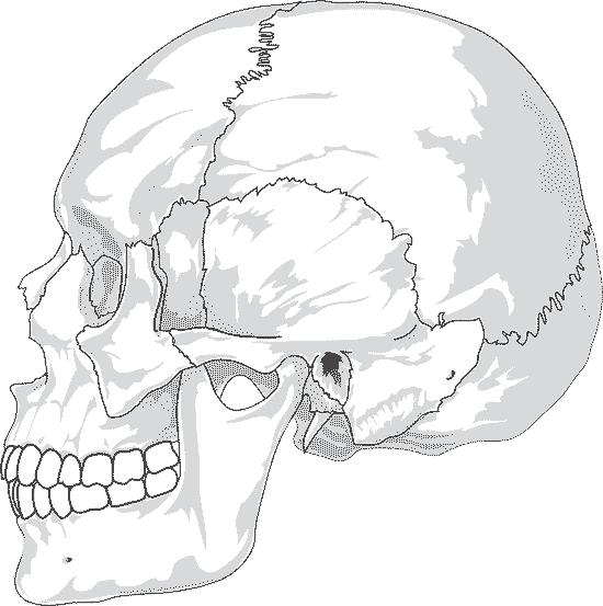 Delle im Kopfschädel