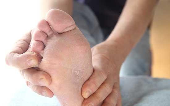 Fußpilz zwischen den Zehen Was tun bei Fußpilz