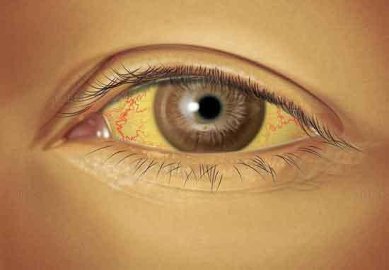 Gelbes Auge (Ikterus) 7 Gründe + Heimbehandlung