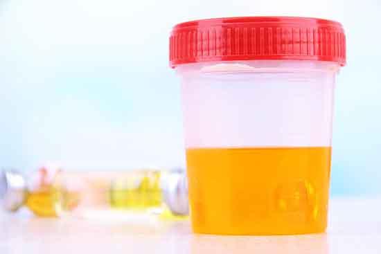 Hämaturie (RBCs im Urin) 11 Ursachen und Behandlung