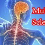 Multiple Sklerose bei Kindern: Ursachen, Symptome, Behandlung