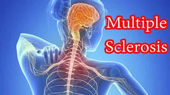 Multiple Sklerose bei Kindern Ursachen und Symptome