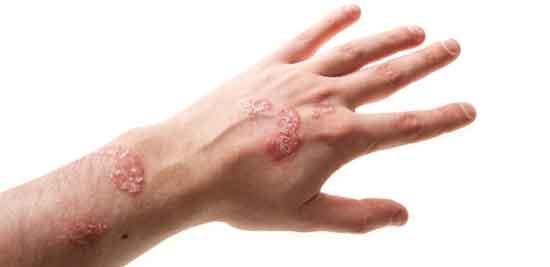 Psoriasis auf der Hand Ursachen, Behandlung, Prävention
