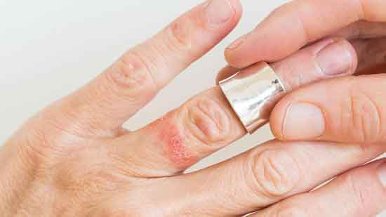 Ring Ausschlag Ursachen, Symptome und Behandlung