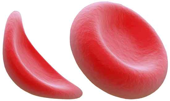 Sichelzellenkrankheit 11 Ursachen (und wie zu behandeln)