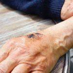 Warum juckt der Schorf? Ursachen und Behandlung