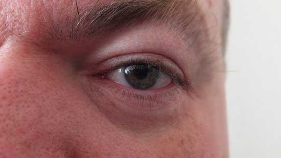 unebene Augenlider 8 mögliche Ursachen und Behandlung
