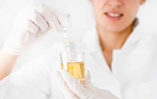 zu viel Urobilinogen im Urin