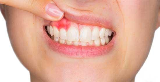 Abszess Zahn - Behandlung und 10 Hausmittel