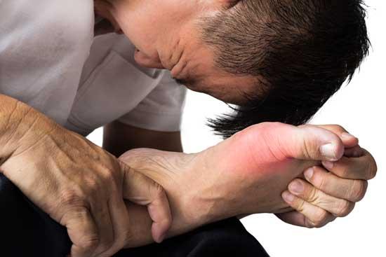 Gicht Definition, Symptome, Ursachen, Behandlung, Diagnose