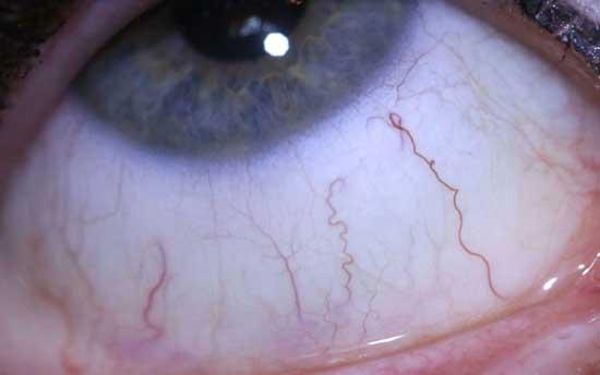 Parasit im Auge - 10 Symptome und Behandlung