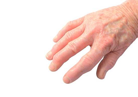 Psoriasis-Arthritis Symptome, Diagnose, Ernährung, Therapie