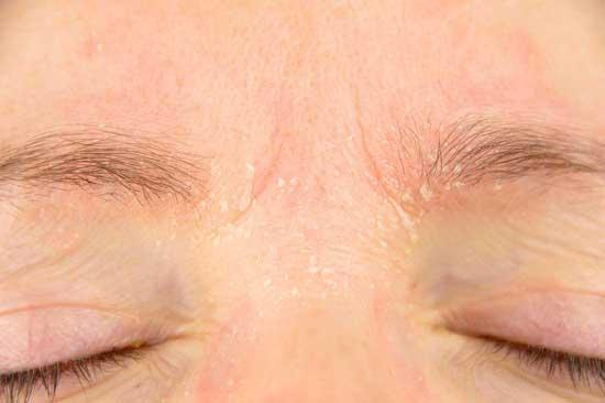 Psoriasis Gesicht - 7 Ursachen und 13 Hausmittel