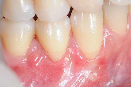 Top 14 Zahnfleischschwund (Zahnfleischrückgang) Hausmittel