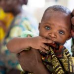 Unterernährung (Mangelernährung): Definition, 22 Symptome, Maßnahmen
