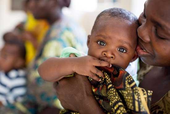Unterernährung (Mangelernährung) Definition, 22 Symptome, Maßnahmen