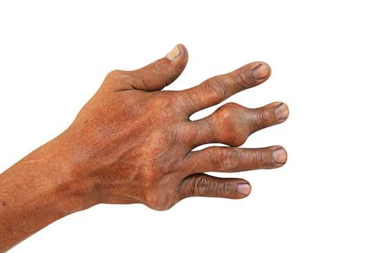 Was ist ein Tophus (Gichttophus) Ursache, 4 Symptome, Behandlung
