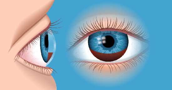 Ader im Auge geplatzt, Ursachen und Behandlung