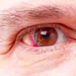 Bluterguss im Auge, Ursachen, Behandlung, und wie lange?
