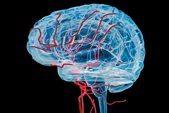 vaskuläre Enzephalopathie, Erklärung, Behandlung, Lebenserwartung