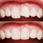 Zahnverbindungen: Was ist zu erwarten, wenn Sie Ihre Zähne gebunden haben?