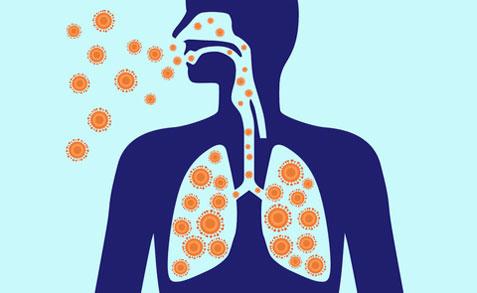 Alles über Lungenentzündung und wie man sie effektiv behandelt