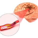 Aneurysma: Ursachen, Symptome, Diagnose, Behandlung