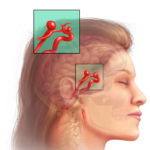 Aneurysma im Gehirn: Ursachen, Symptome, Behandlung