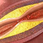 Atherosklerose: Definition, Ursachen, Symptome, Behandlung