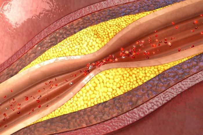 Atherosklerose Definition, Ursachen, Symptome, Behandlung