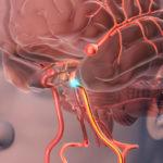 Beerenaneurysma: Symptome, Ursachen und Behandlung