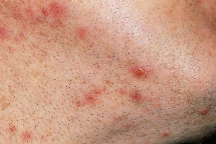 Follikulitis-Wiki Ursachen, Symptome, Behandlung