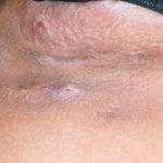 Hidradenitis suppurativa: Behandlungen, Ursachen, Symptome