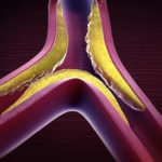 Hyperlipidämie: Symptome, Ursachen, Behandlung